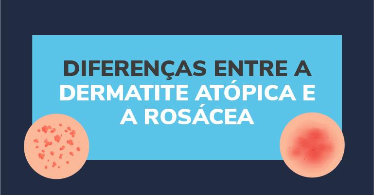 Diferenças entre a dermatite atópica e a rosácea